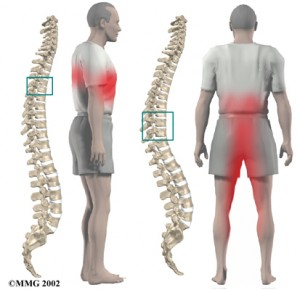 La espalda duele al azor