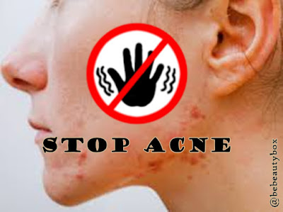 Easy way to Clear Up your Acne