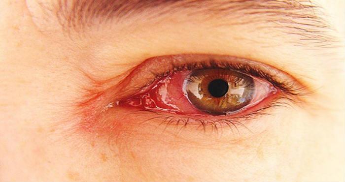 Cara Alami Menyembuhkan Sakit Mata