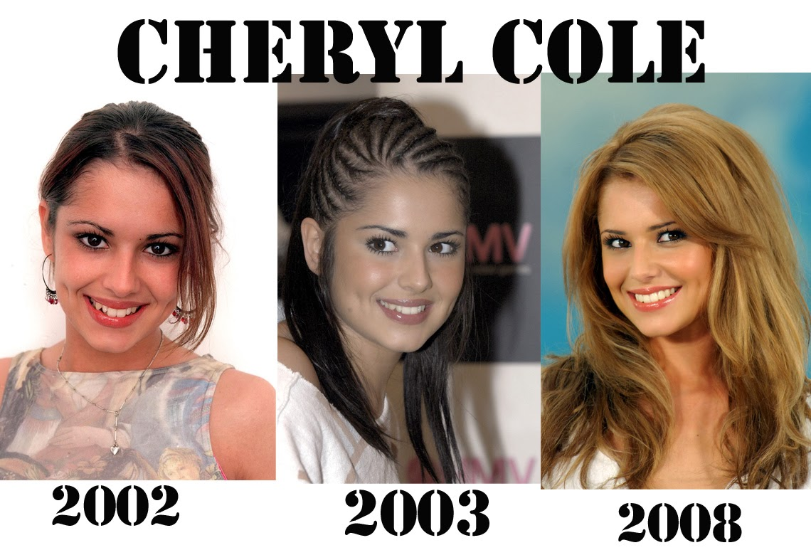 Cheryl Cole Plastic Surgery