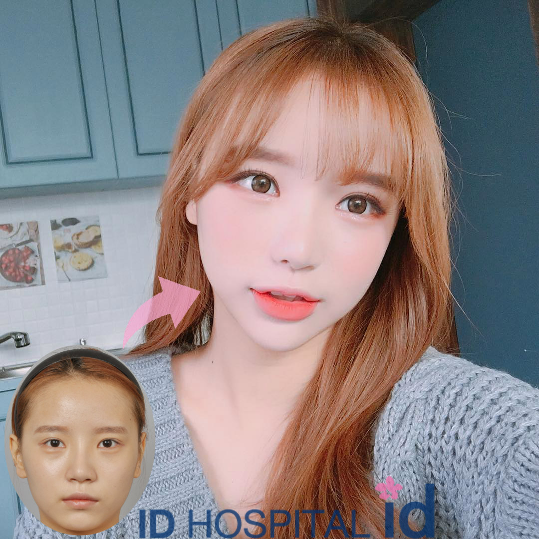 Ulzzang Makeup Before And After ID Hospital Korea Plas...