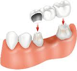 Houston dental implant