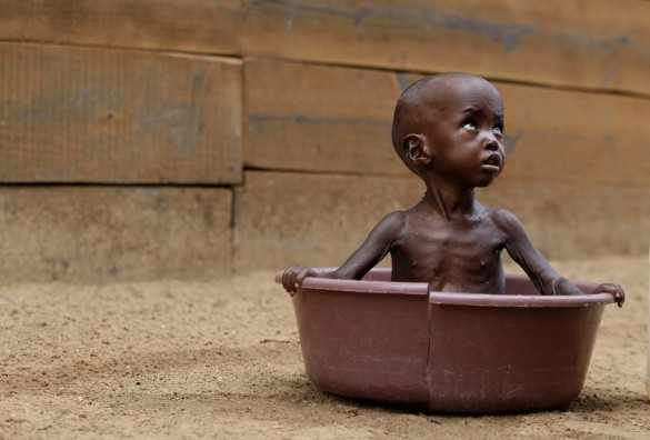 End Famine in  Africa