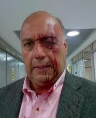 http://1.bp.blogspot.com/-dLUWh7kEHuA/UXIv5cmr5iI/AAAAAAAAMXg/kL1KHAStuH8/s400/Diputado_Venezuela_agredido1.jpg