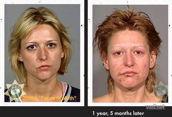 wajah ke 5 Wajah Para Pemakai Narkoba Sebelum Dan Sesudah Kecanduan