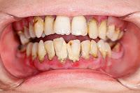 gingivitis karang gigi periodontitis