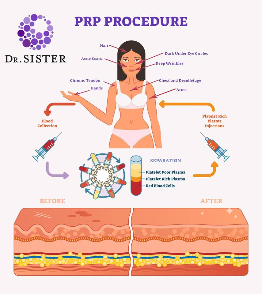 PRP Dracula Therapy by Dr Daniel Sister