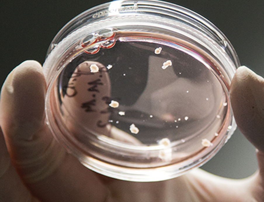 Brain Organoids  A new method for growing human brain cells could unlock the mysteries of neurological disorders.