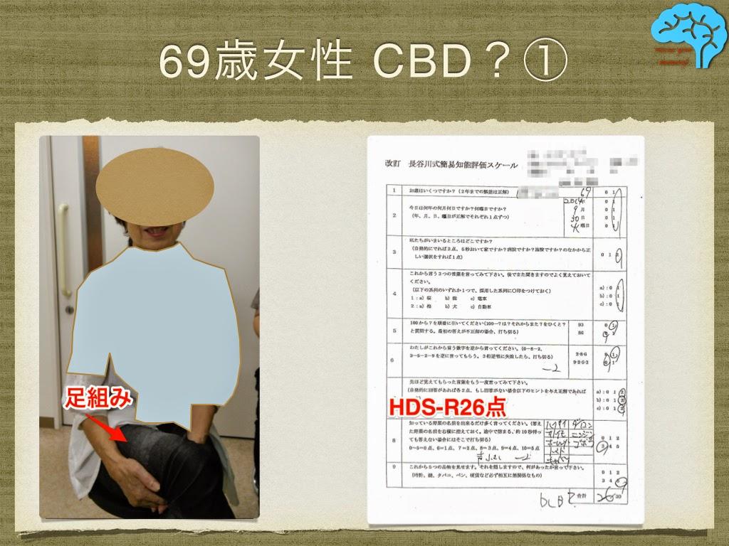 皮質基底核変性症(CBD) 容貌