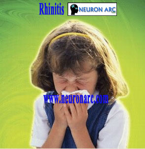 Rhinitis: what is Rhinitis, symptoms, types and treatment