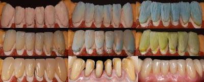 realización carilla dental