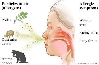 Allergic Rhinitis, Allergen, Dust Allergy, thumal