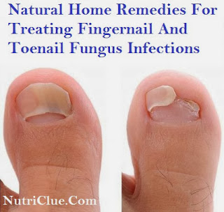 Natural Home Remedies For Treating Fingernail And Toenail Fungus Infections