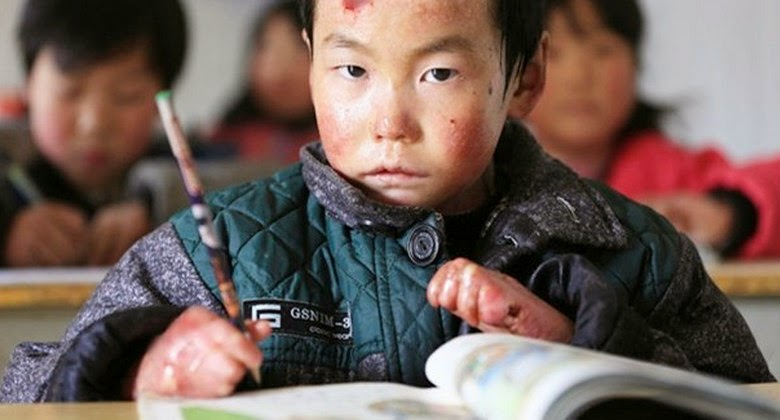 Anak Malang ini Mengalami Penyakit Aneh Namun Tetap Semangat dan Sekolah