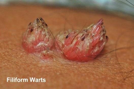 Girls images of anal warts jailbait