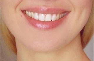 احصلى على شفايف وردية جذابة بطريقة بسيطة - شفائف شفة شفاه - lips
