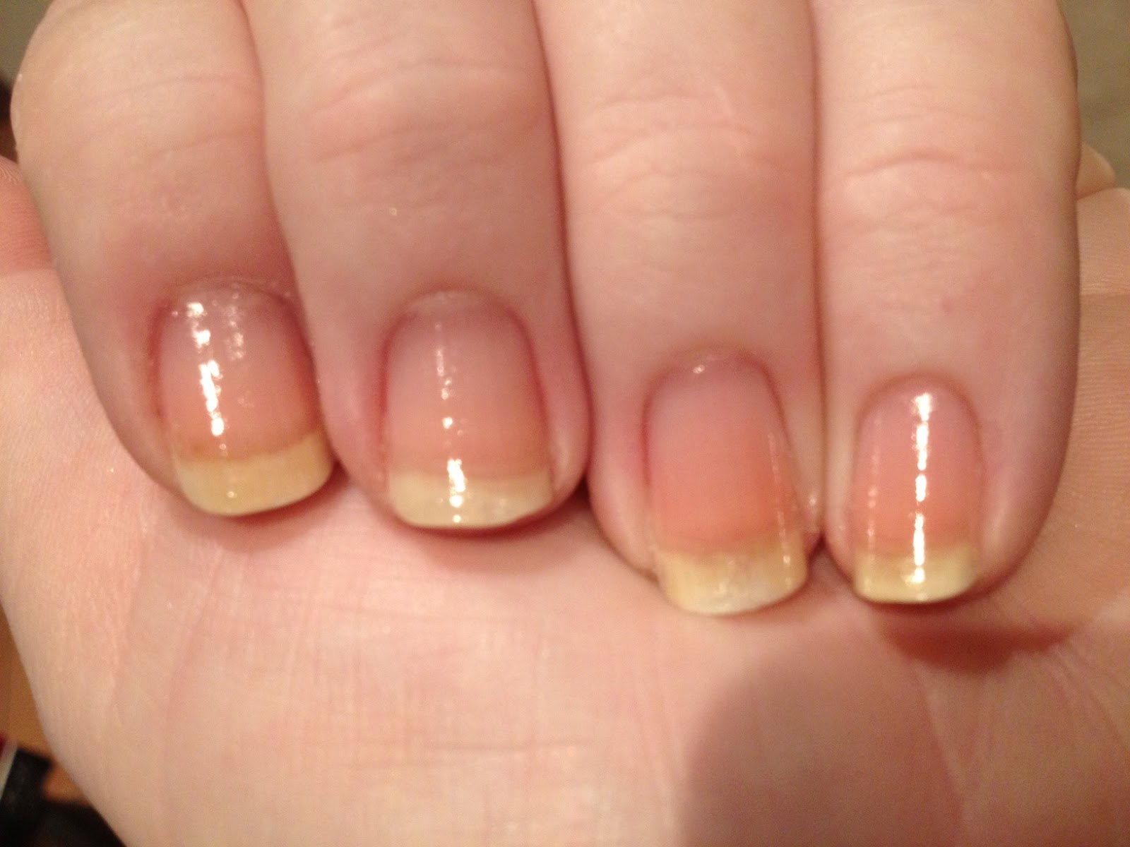 how to stop biting and picking nails