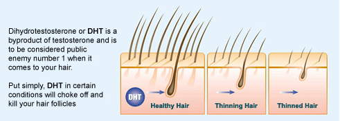 and Herbs can reduce DHT Level and Grow your Hair | The Awesome Info