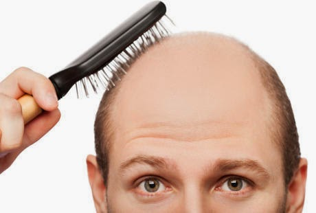 solusi ampuh terjamin mengobati kerontokan rambut