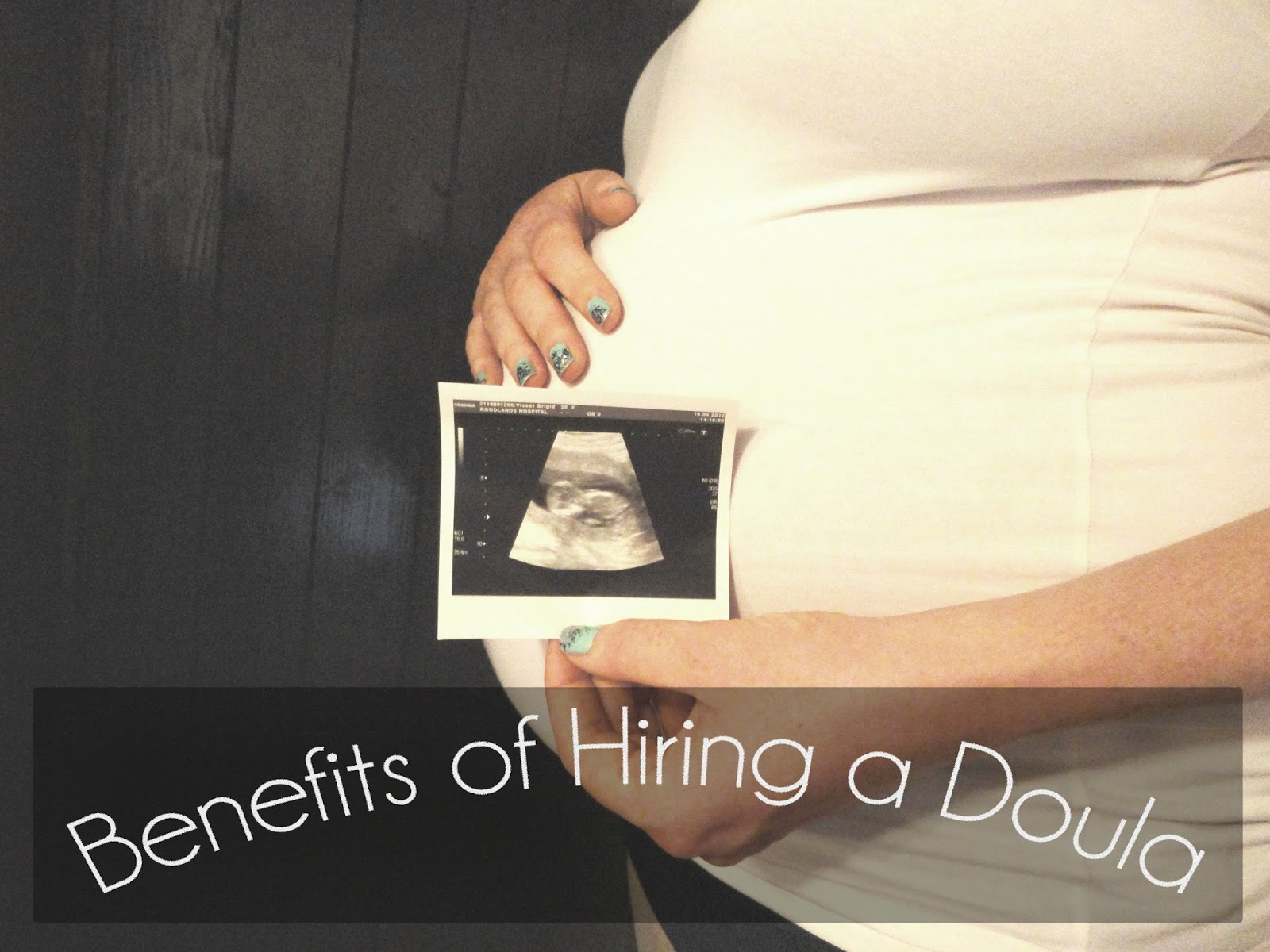 Benefits of Hiring a Doula
