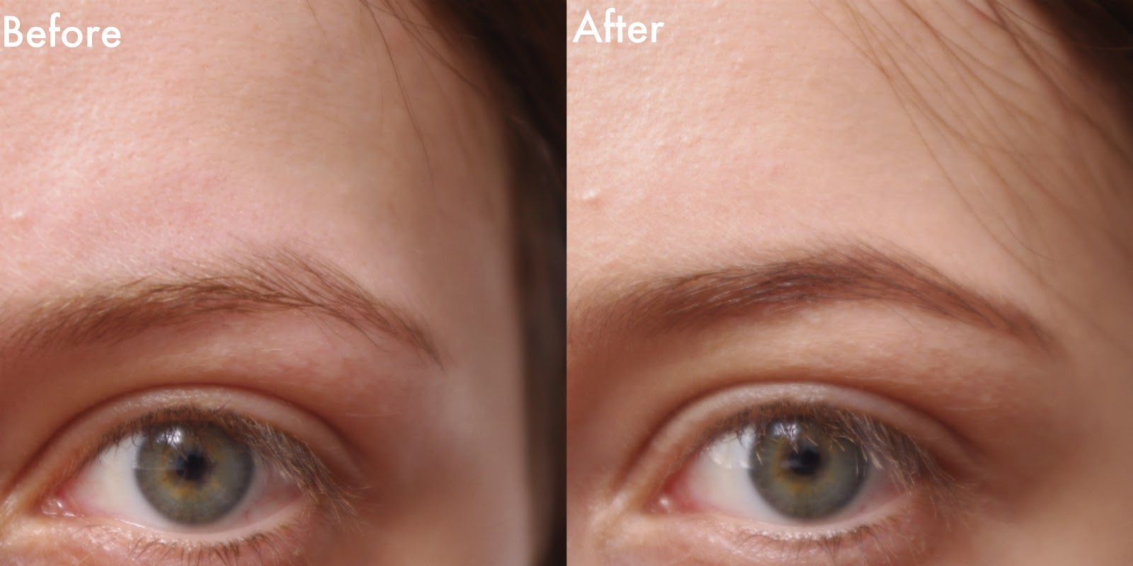 Before And After Brazilian Wax Photos Hairstylegalleries Com