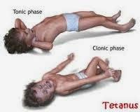 Obat Herbal Tetanus