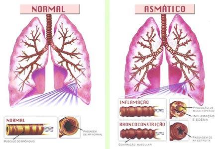 http://1.bp.blogspot.com/-depTEBd-Cag/Ti2uJoE6nXI/AAAAAAAAAIw/lC4vWPhY7Co/s1600/ft_doencas_asma.jpg