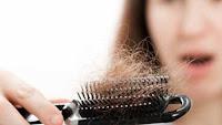Cara Mengatasi Rambut Rontok Benar Ampuh