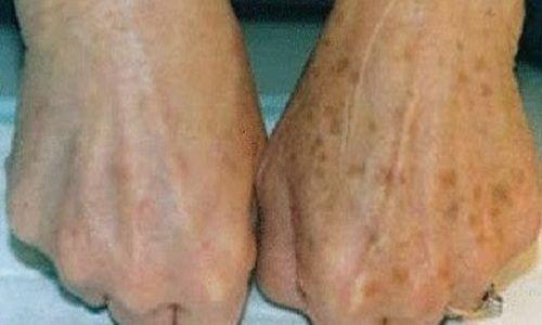 Descoramento de pele com nata azeda