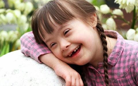 A Síndrome de Down e sua patogênese