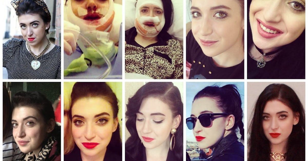 My Double-Jaw Surgery Experience   One Year On   THUNDER AND THREADS