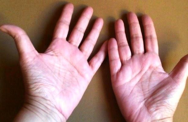 Palmas de manos