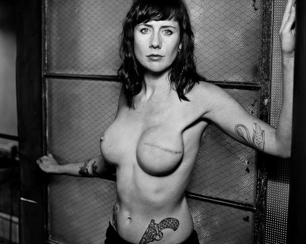 cancer-mama -cicatriz da mastectomia-quimioterapia-fotos-thescarproject-David Jay-dascoisasquetenhoaprendido