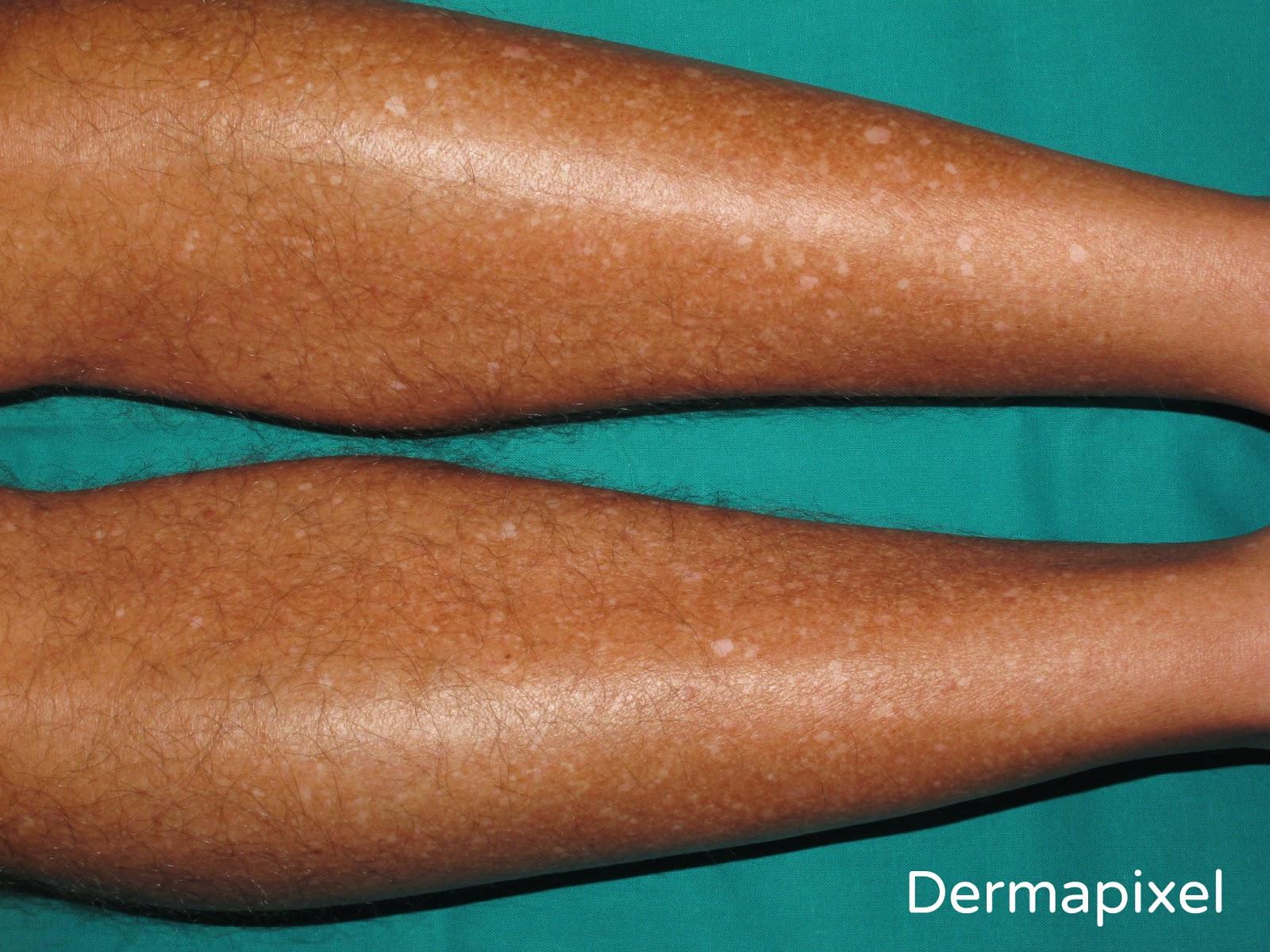 Quitar las manchas de pigmento sobre la persona por los ungüentos