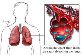 the acute pulmonary edema medications