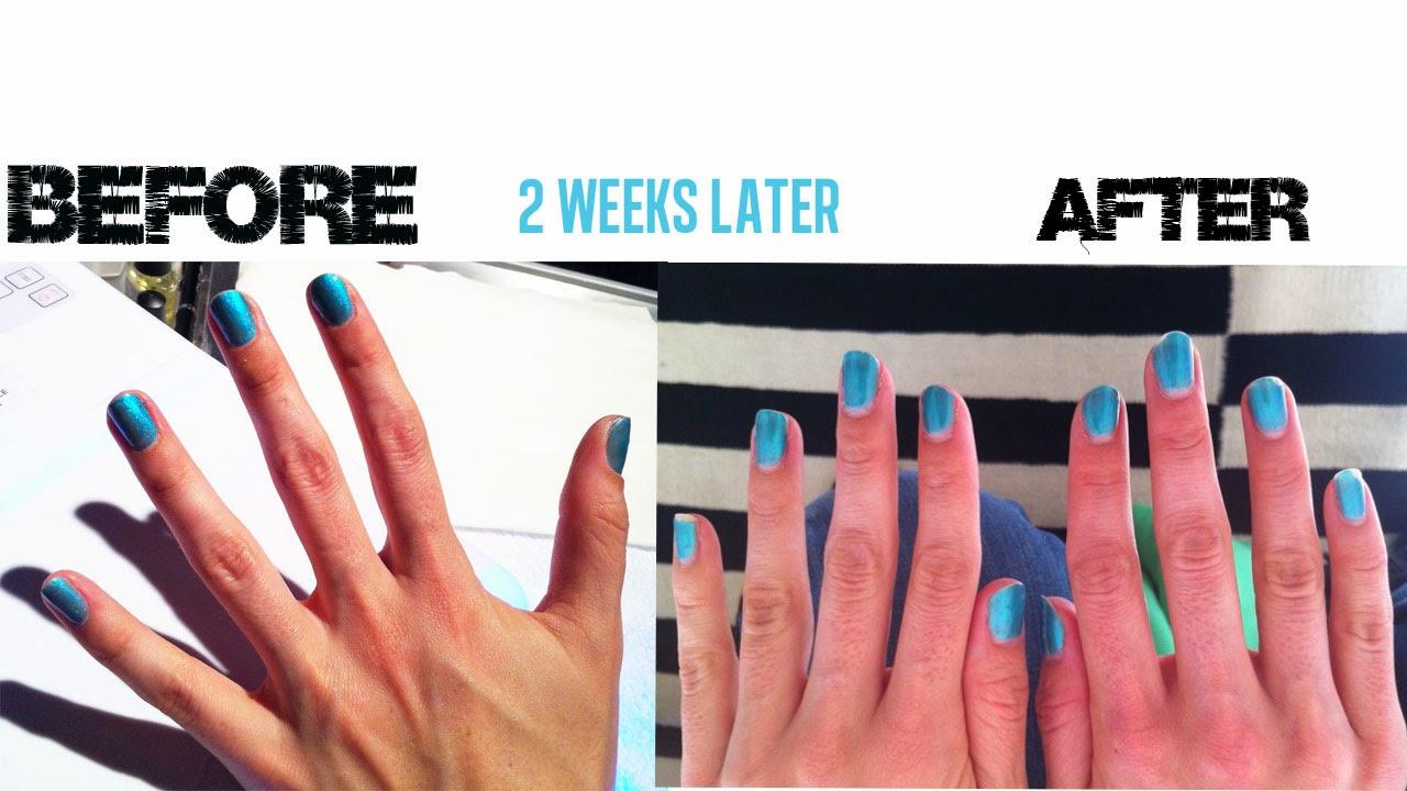 Cute Gel Nails Ideas Magnificent