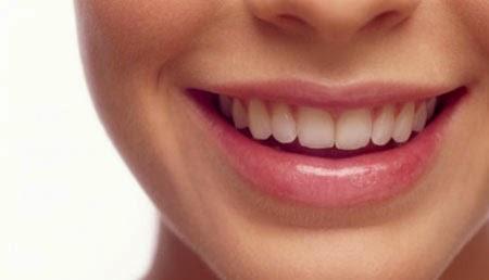 Cara Sederhana Memutihkan Gigi Kuning