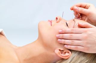 acupunturA - Eficácia da acupuntura em pacientes com DTM