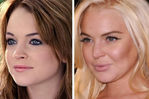 lindsay lohan destroyed by plastic surgery nose job breast implants