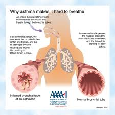 Asthma-Causes-Signs and Symptoms-Complications-Treatment