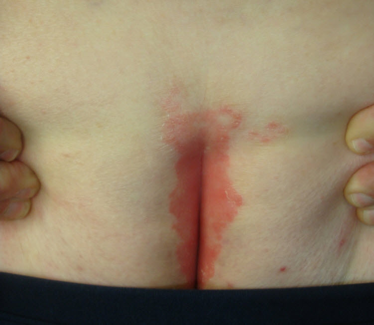 Tinea crurisErythrasma, Candida intertrigo, inverse psoriasis, and seborrheic dermatitis 1