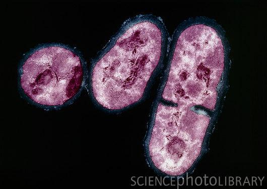 Propionibacterium acnes - Wikipedia