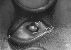 Xeroftalmía avanzada con destrucción de la córnea y ceguera total