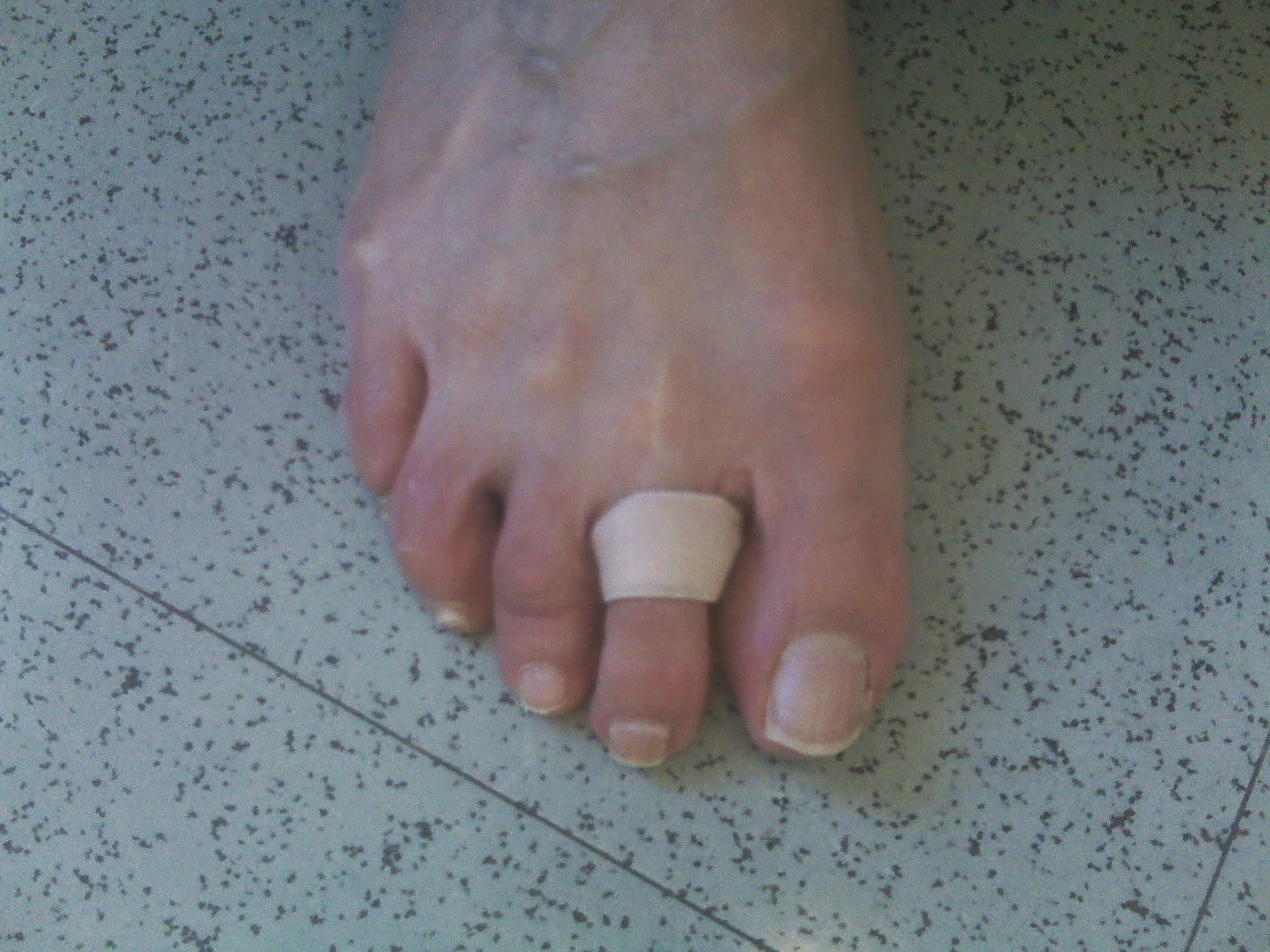 Foot and ankle problems by dr richard blake 2nd mpj plantar plate to prevent the toe splint from moving place a small piece of tape between the elastic band and the toe publicscrutiny Image collections