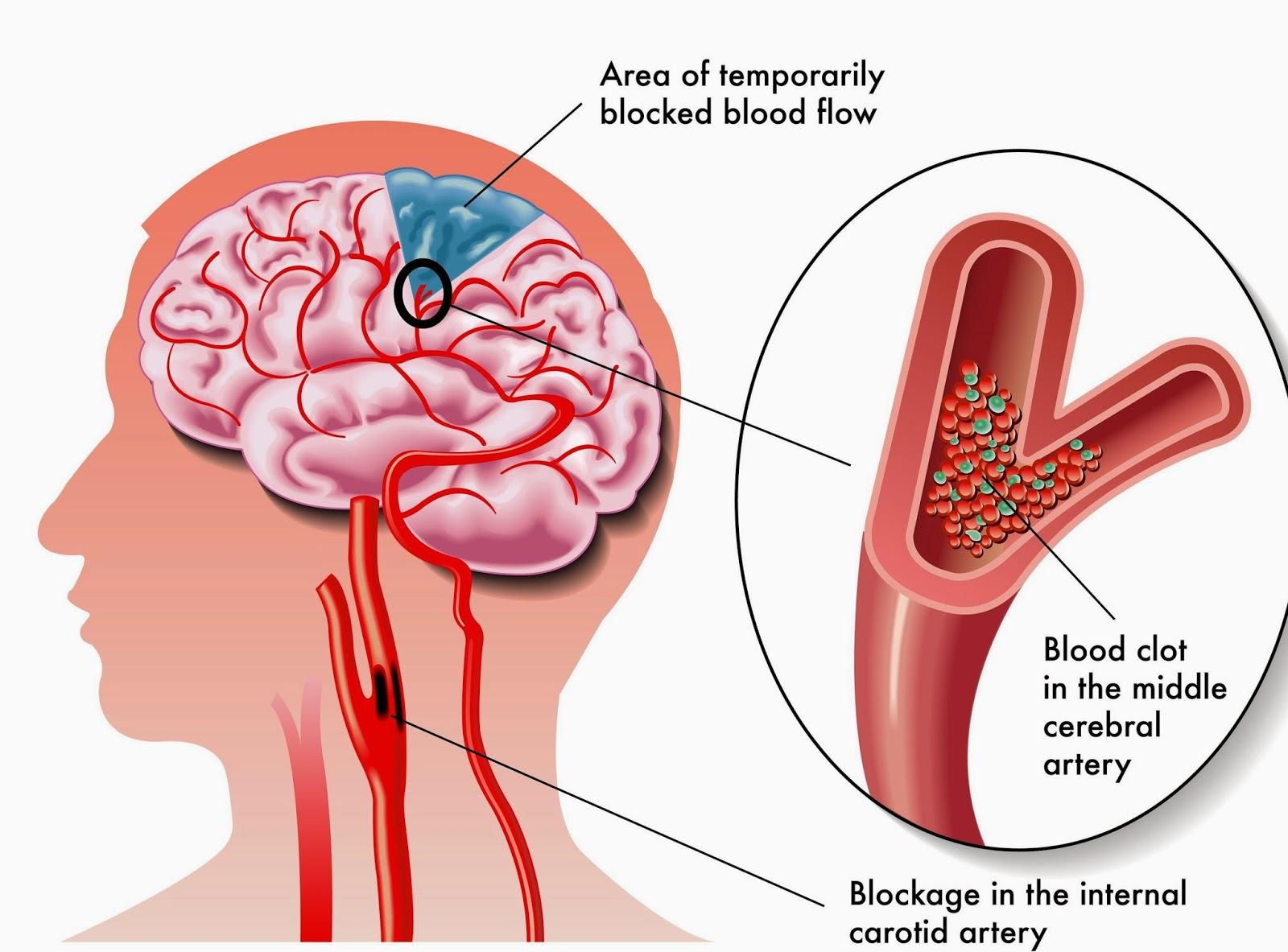 Cara Mencegah Penyakit Stroke sejak dini