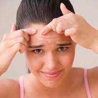cara menghilangkan jerawat, wajah berjerawat