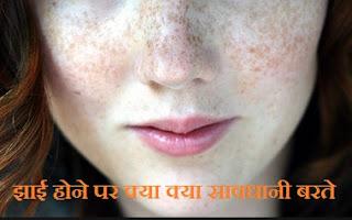 झाई का आयुर्वेदिक और घरेलु इलाज , Jhaai or Pigmentation