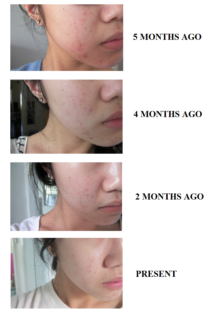 la roche posay effaclar duo before and after acne