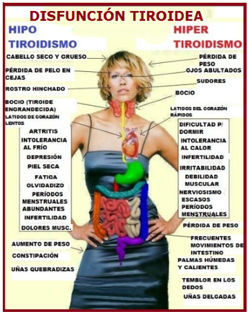 "Mañana ""Dia Mundial de la Tiroides ""  Mx3A377"