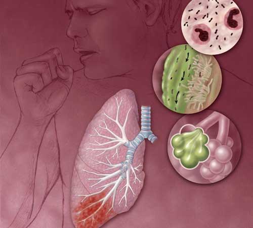Cara Mencegah ISPA Infeksi Saluran Pernapasan Akut TBC Kanker